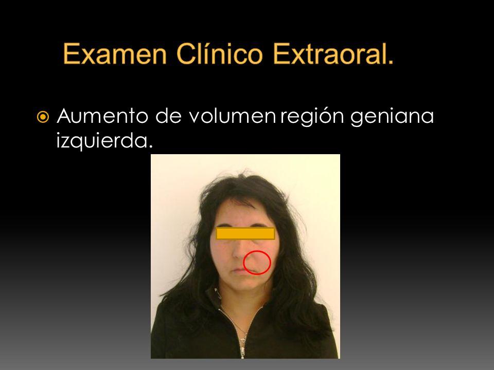 Examen Clínico Extraoral.