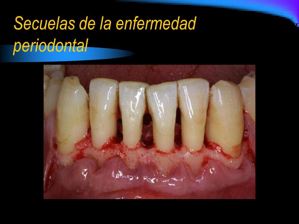 Secuelas de la enfermedad periodontal