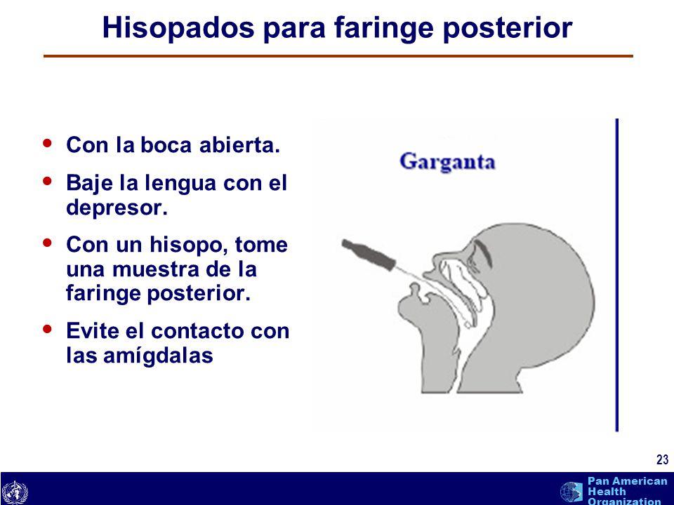 Hisopados para faringe posterior