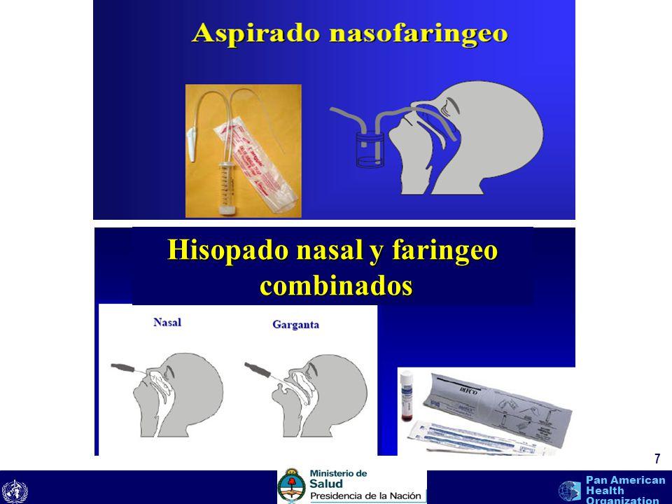 Hisopado nasal y faringeo