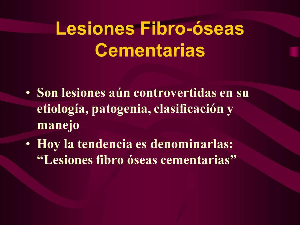 Lesiones Fibro-óseas Cementarias