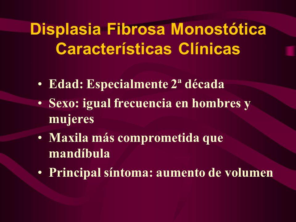 Displasia Fibrosa Monostótica Características Clínicas