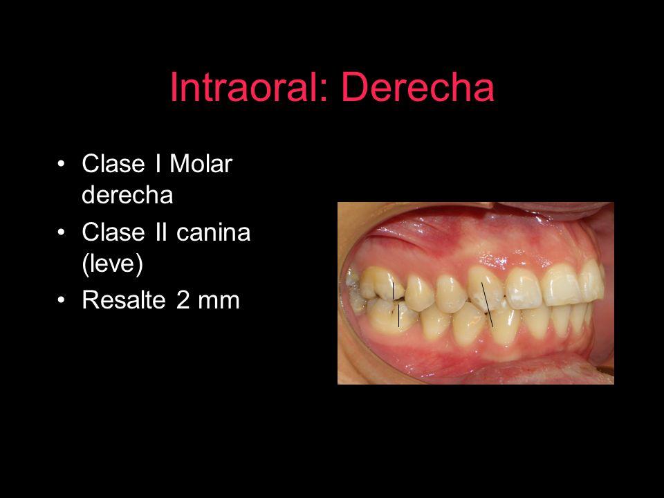 Intraoral: Derecha Clase I Molar derecha Clase II canina (leve)