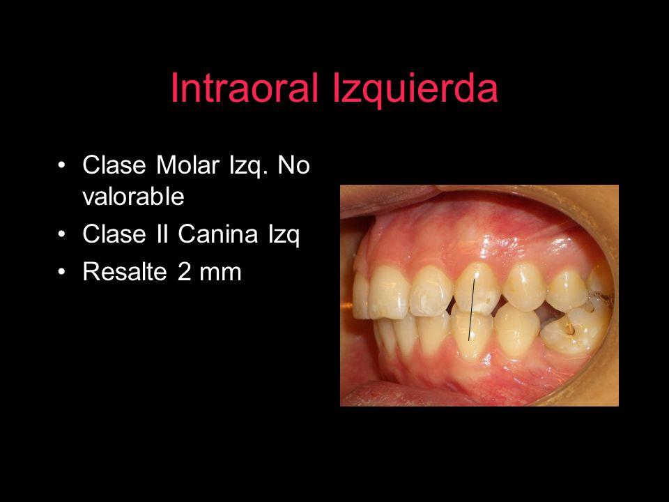 Intraoral Izquierda Clase Molar Izq. No valorable Clase II Canina Izq