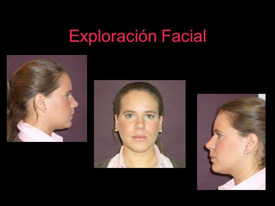 Exploración Facial