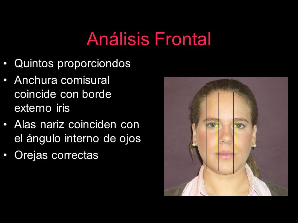 Análisis Frontal Quintos proporciondos