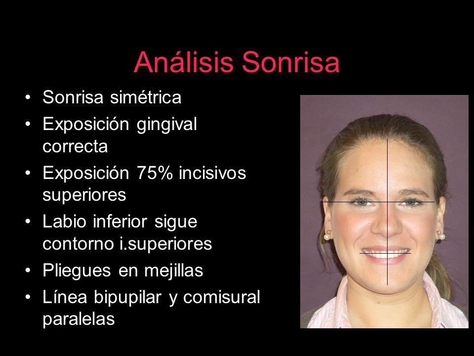 Análisis Sonrisa Sonrisa simétrica Exposición gingival correcta