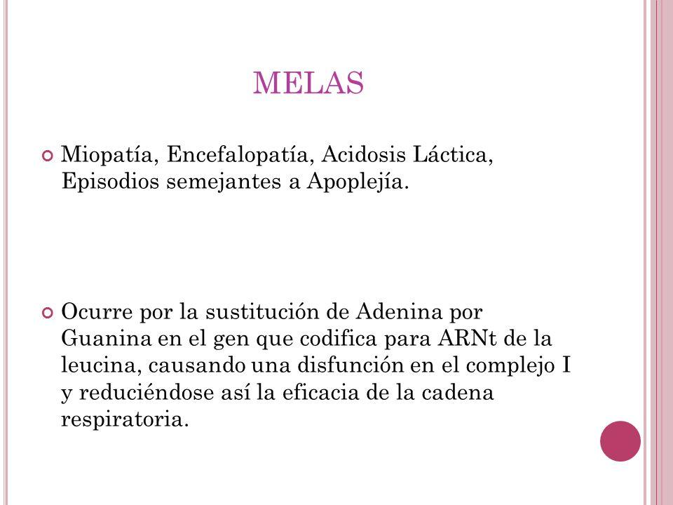 melas Miopatía, Encefalopatía, Acidosis Láctica, Episodios semejantes a Apoplejía.