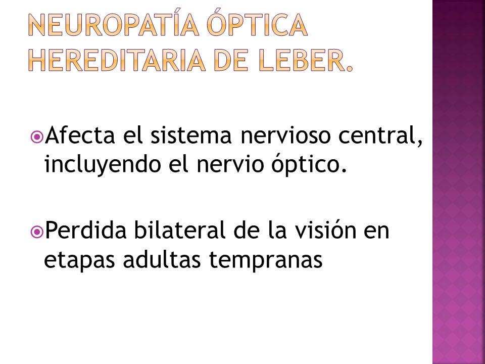 Neuropatía Óptica Hereditaria de Leber.