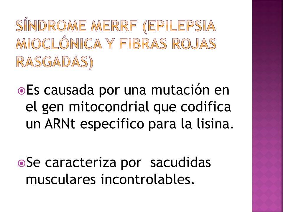 Síndrome MERRF (epilepsia mioclónica y fibras rojas rasgadas)