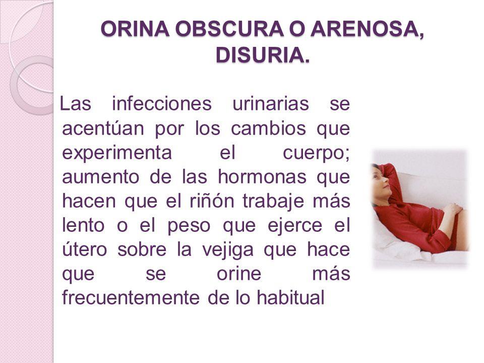 ORINA OBSCURA O ARENOSA, DISURIA.