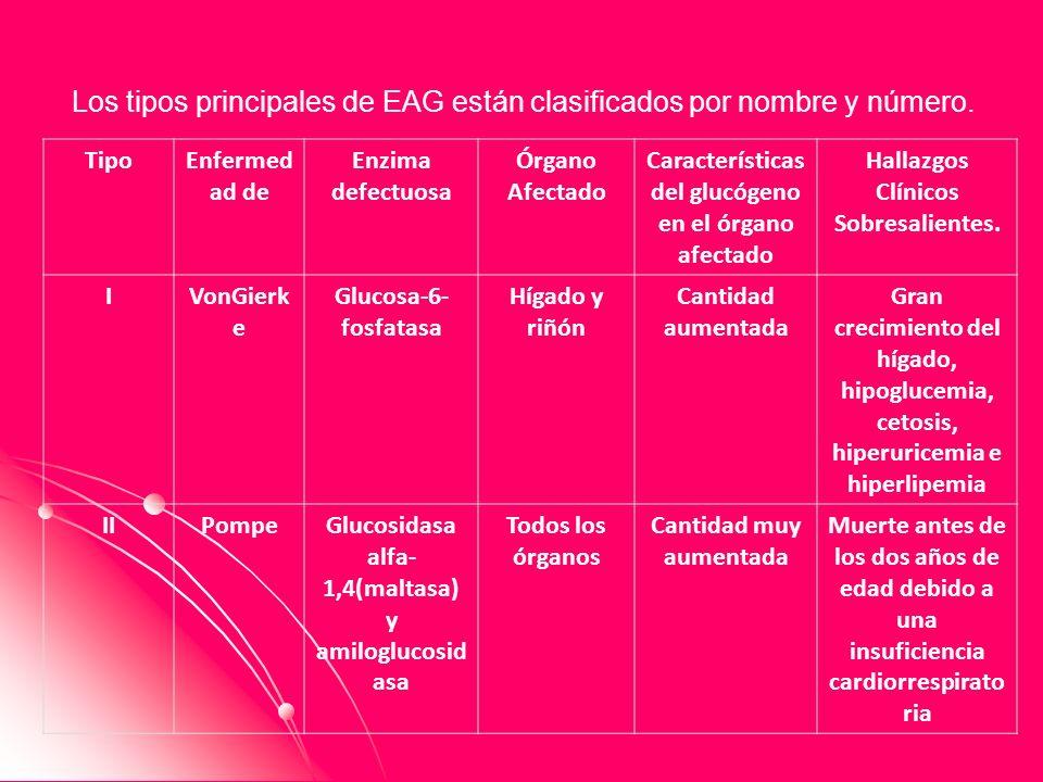Los tipos principales de EAG están clasificados por nombre y número.