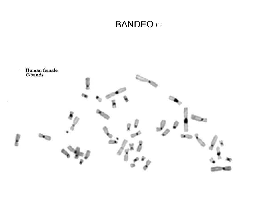 BANDEO C
