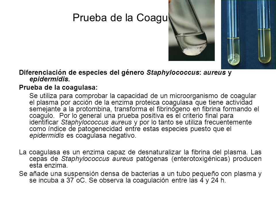 Prueba de la CoagulasaDiferenciación de especies del género Staphylococcus: aureus y epidermidis. Prueba de la coagulasa: