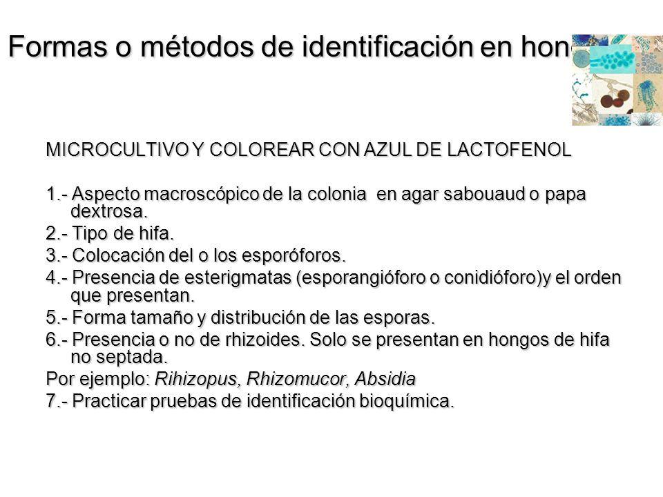 Formas o métodos de identificación en hongos