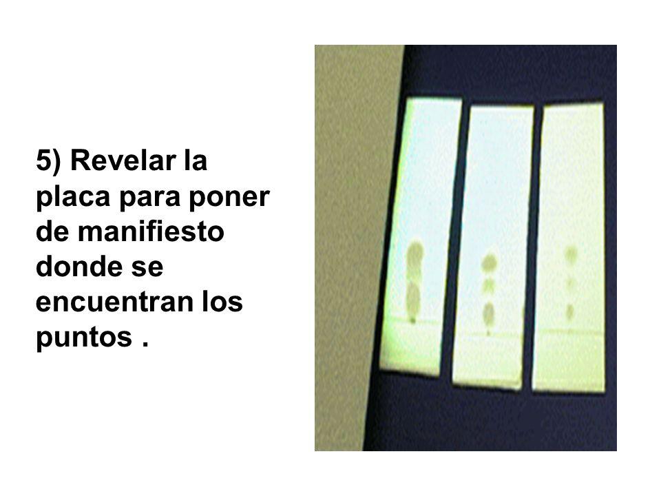 5) Revelar la placa para poner de manifiesto donde se encuentran los puntos .