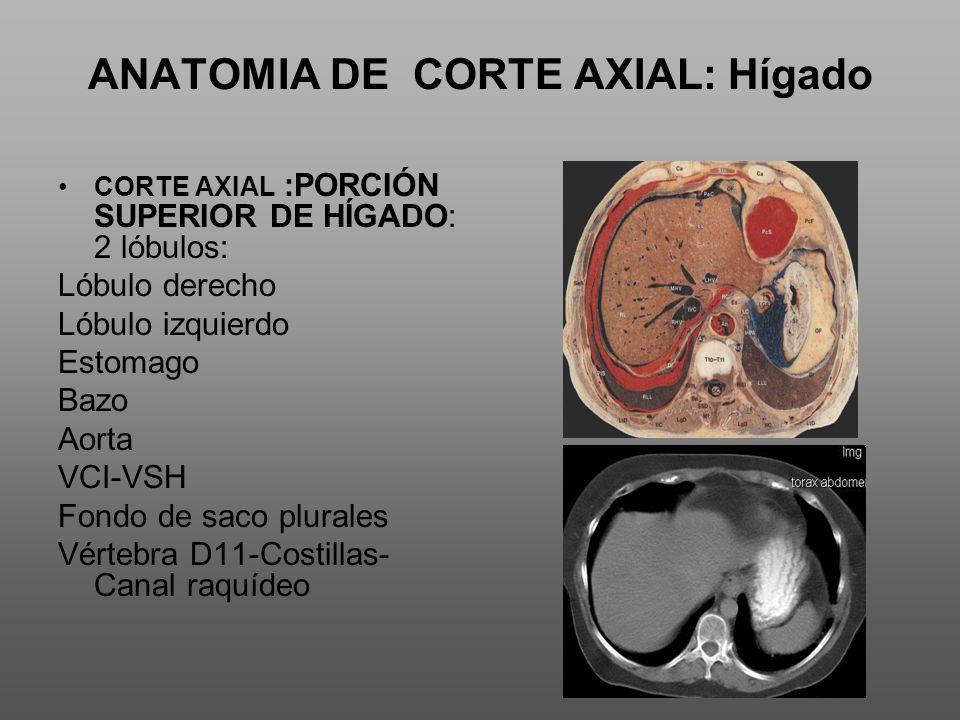 ANATOMIA DE CORTE AXIAL: Hígado