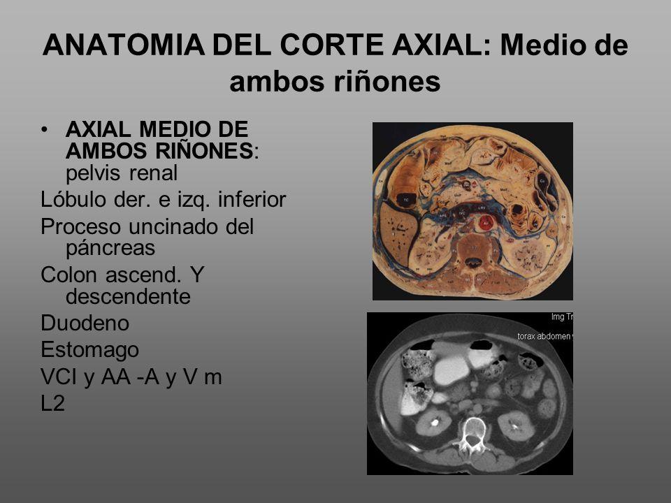 ANATOMIA DEL CORTE AXIAL: Medio de ambos riñones