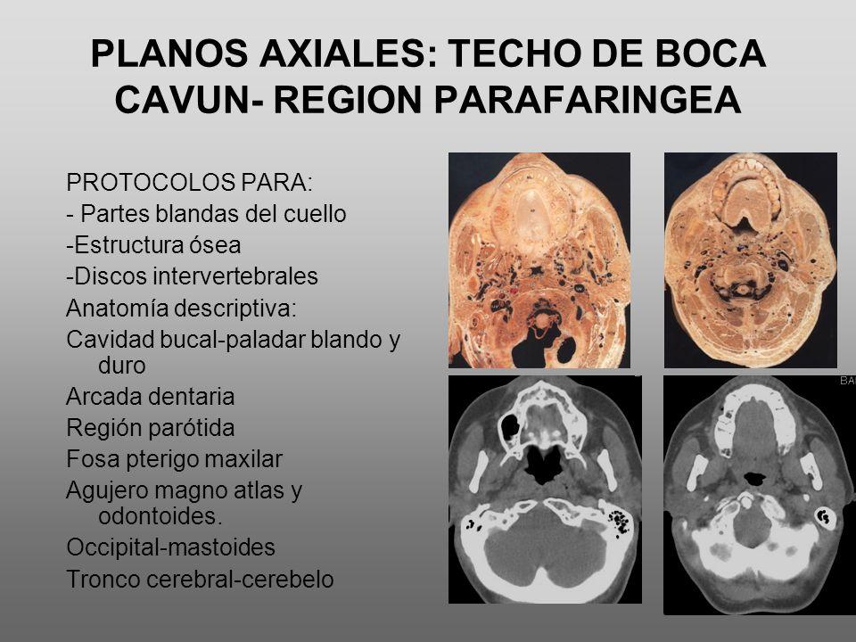 PLANOS AXIALES: TECHO DE BOCA CAVUN- REGION PARAFARINGEA