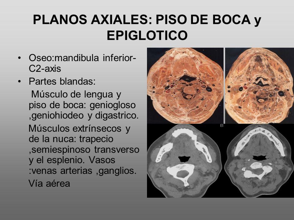 PLANOS AXIALES: PISO DE BOCA y EPIGLOTICO
