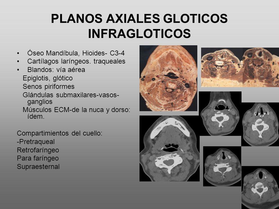 PLANOS AXIALES GLOTICOS INFRAGLOTICOS