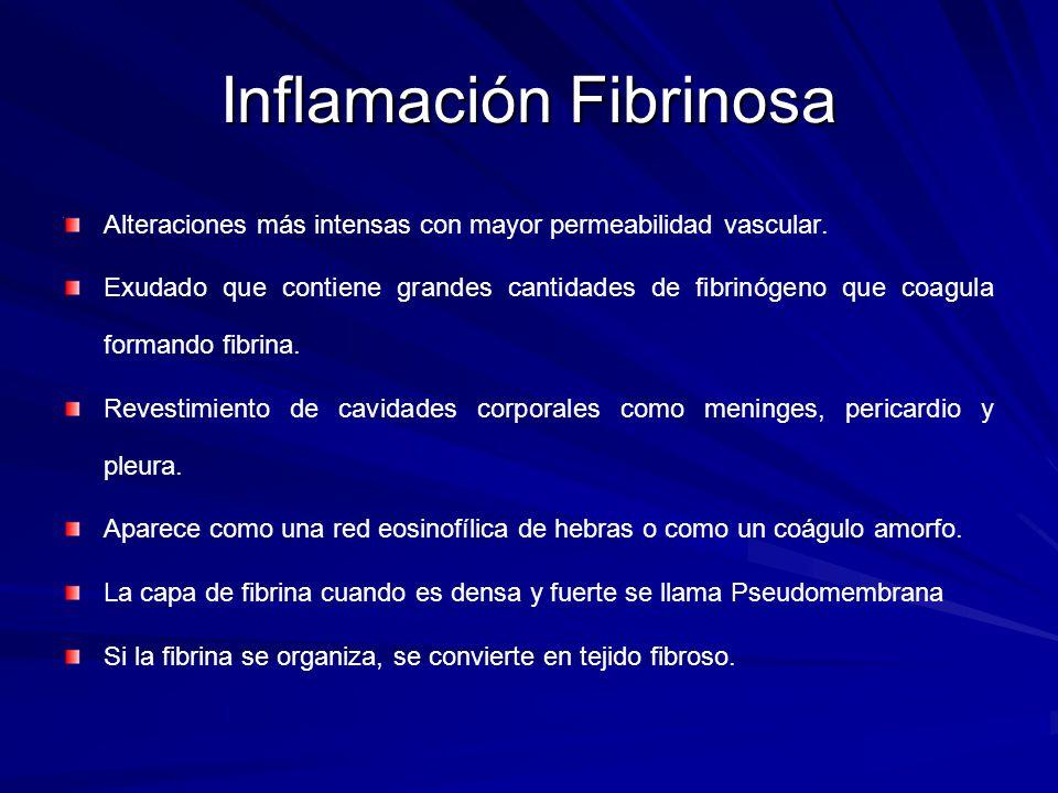 Inflamación Fibrinosa