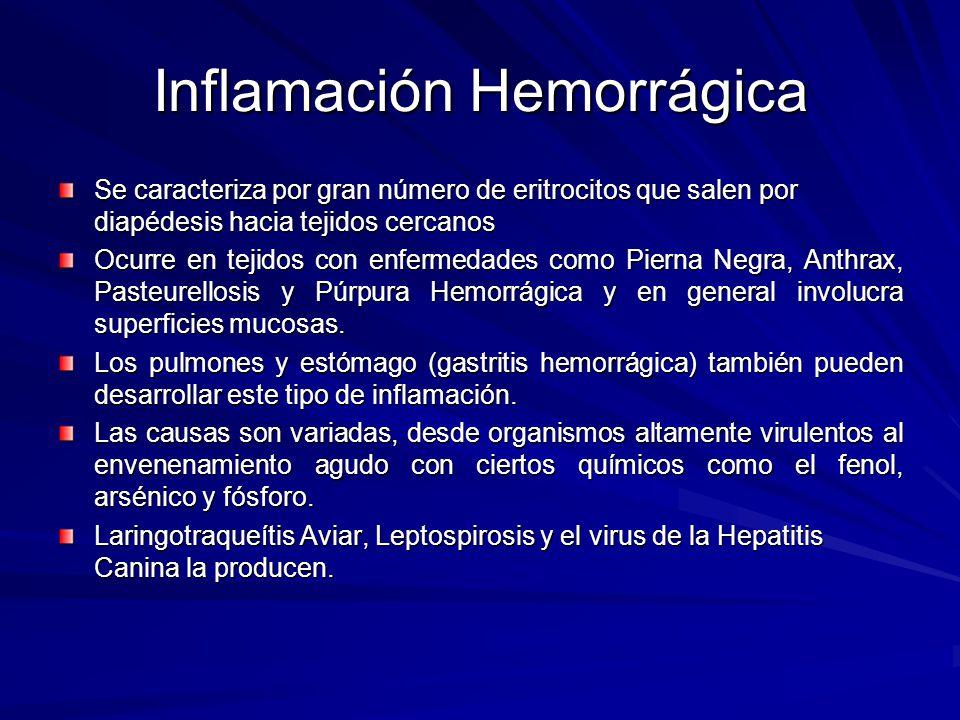 Inflamación Hemorrágica