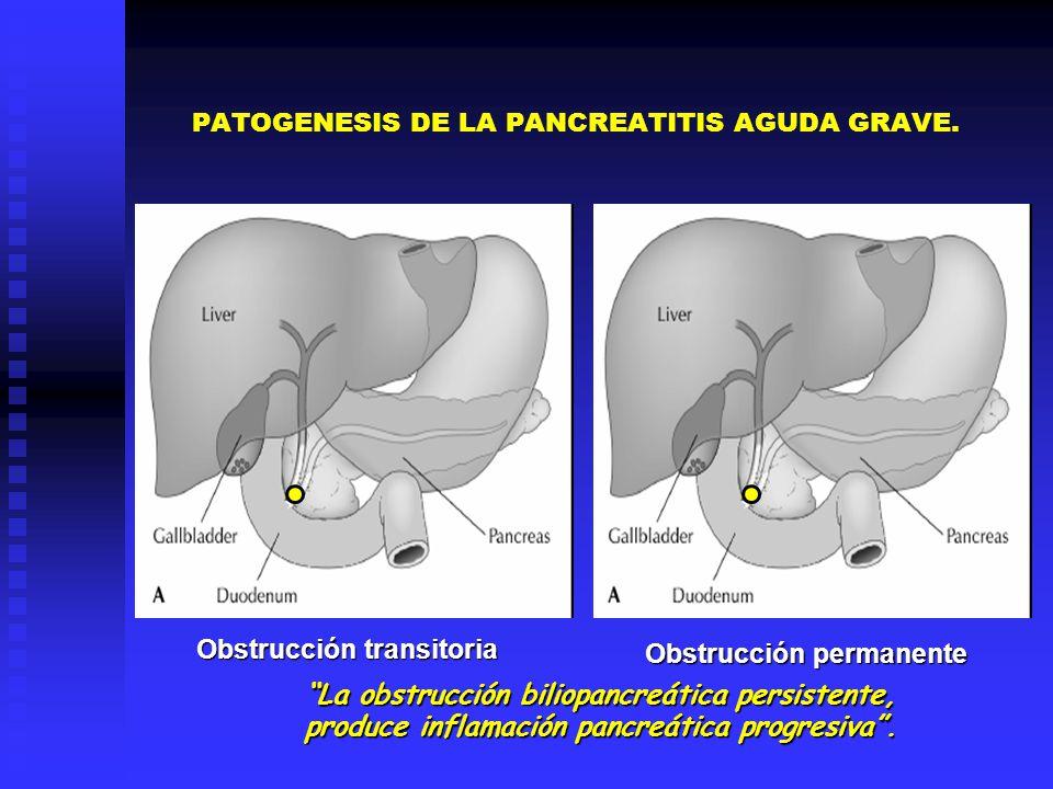 PATOGENESIS DE LA PANCREATITIS AGUDA GRAVE.