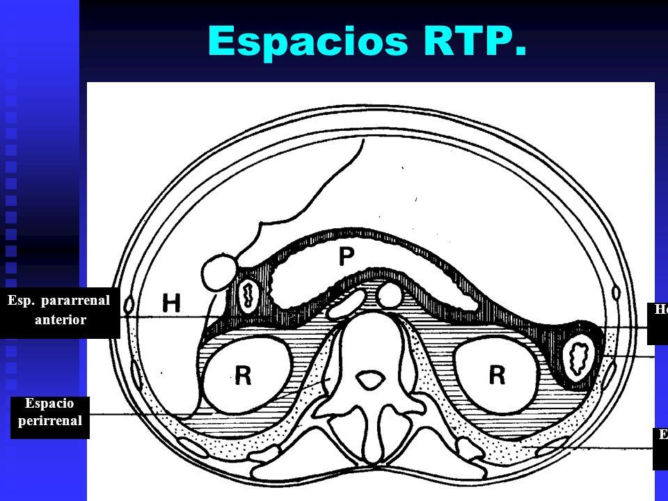 Espacios RTP. Esp. pararrenal anterior Hoja ant. fascia de Gerota