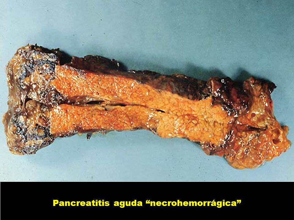 Pancreatitis aguda necrohemorrágica