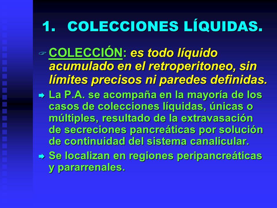 COLECCIONES LÍQUIDAS. COLECCIÓN: es todo líquido acumulado en el retroperitoneo, sin límites precisos ni paredes definidas.