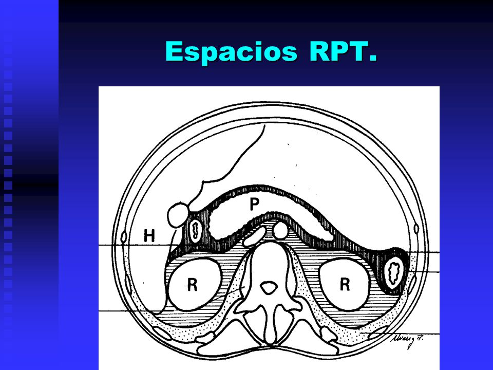 Espacios RPT.