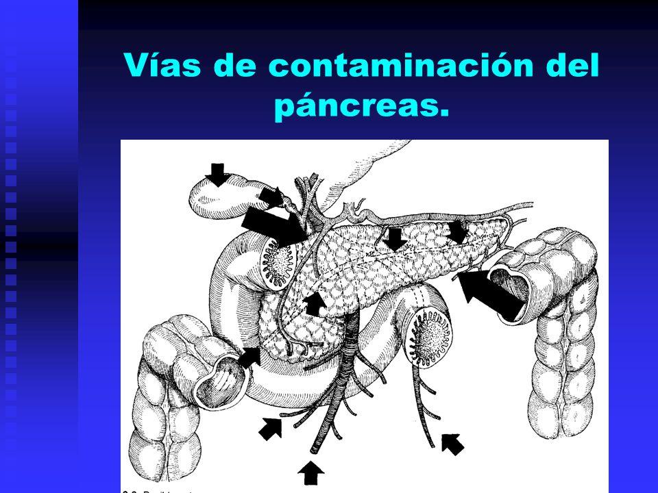 Vías de contaminación del páncreas.