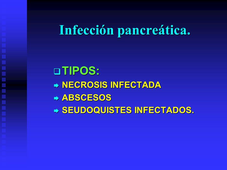 Infección pancreática.