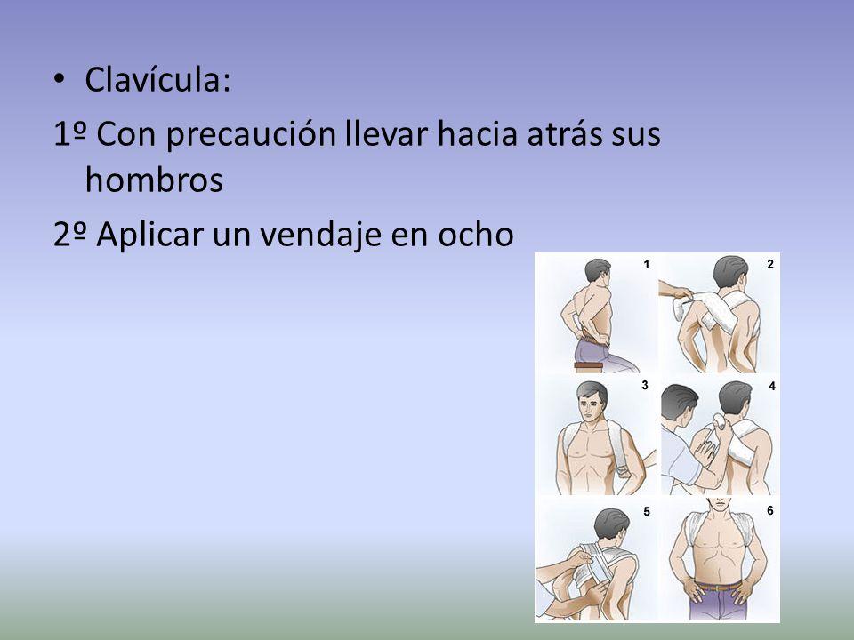 Clavícula: 1º Con precaución llevar hacia atrás sus hombros 2º Aplicar un vendaje en ocho