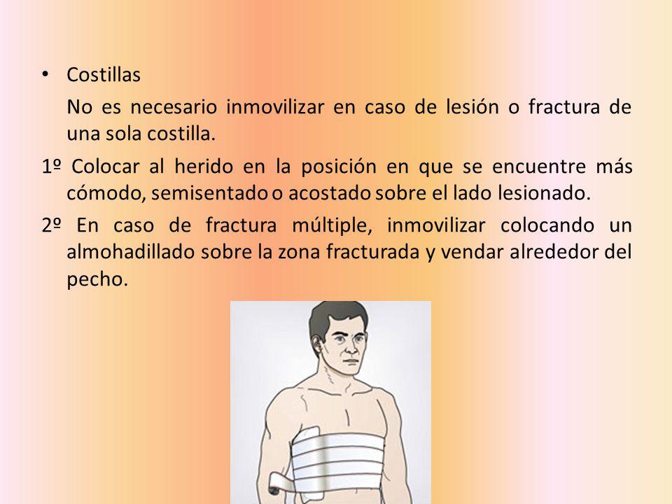Costillas No es necesario inmovilizar en caso de lesión o fractura de una sola costilla.