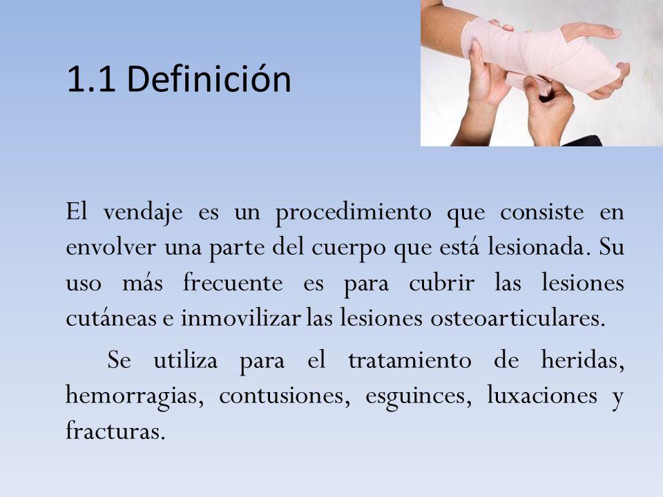 1.1 Definición