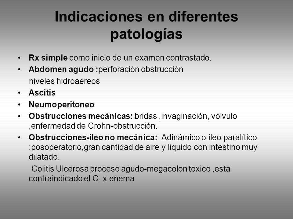 Indicaciones en diferentes patologías