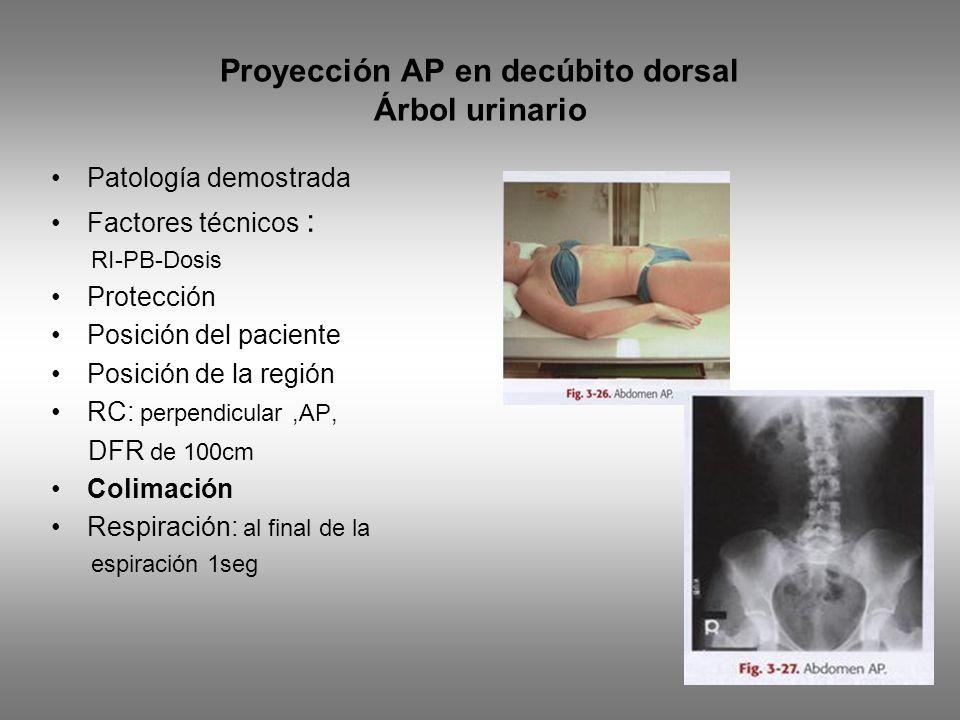 Proyección AP en decúbito dorsal Árbol urinario