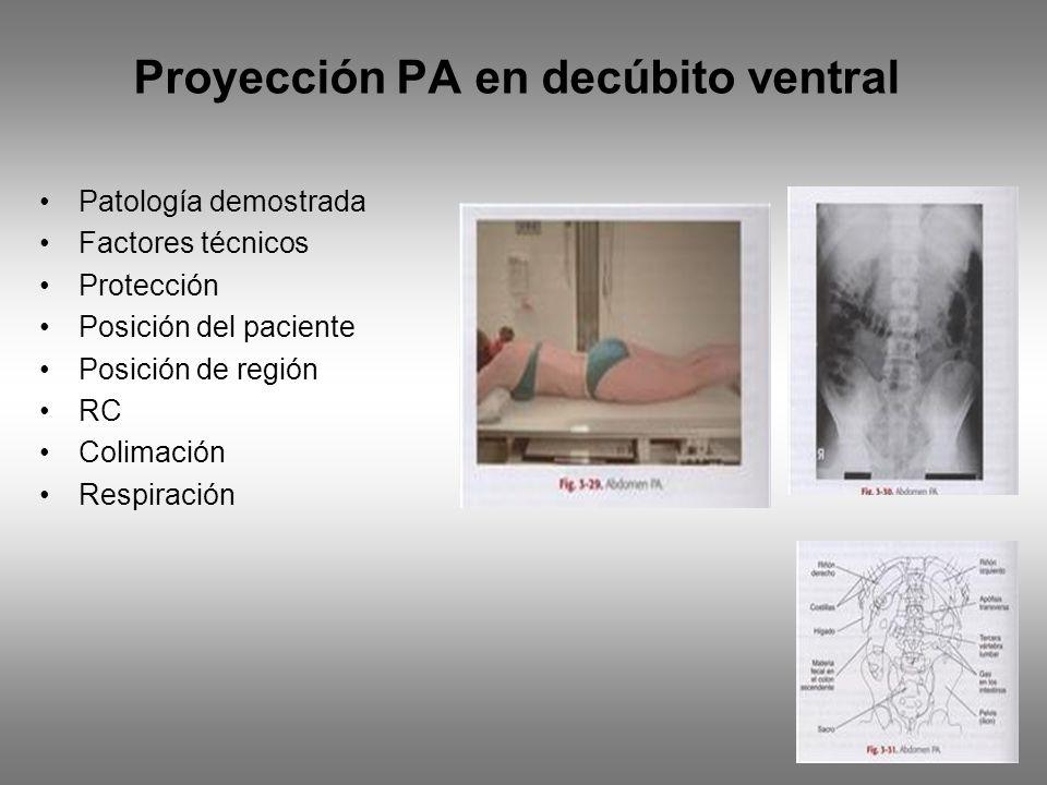 Proyección PA en decúbito ventral