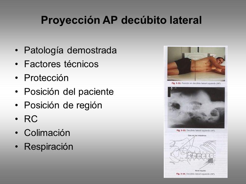 Proyección AP decúbito lateral