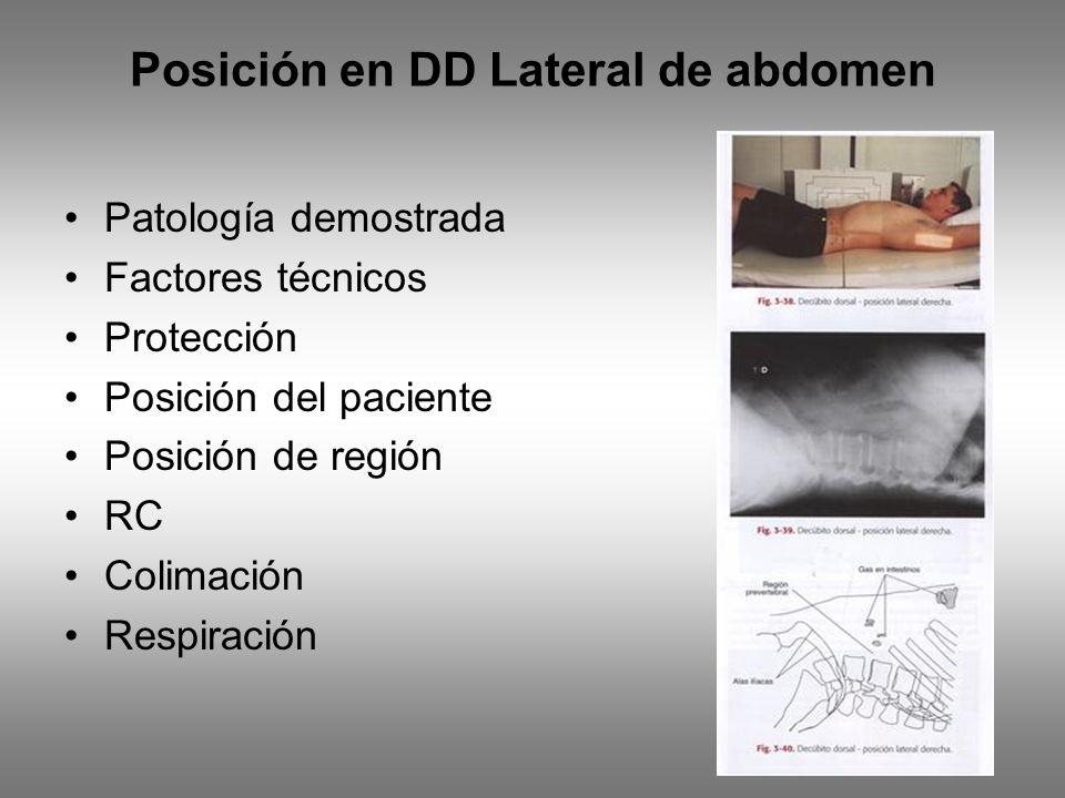 Posición en DD Lateral de abdomen