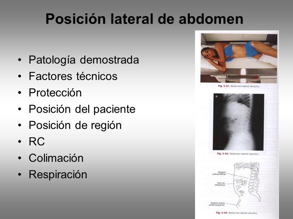 Posición lateral de abdomen