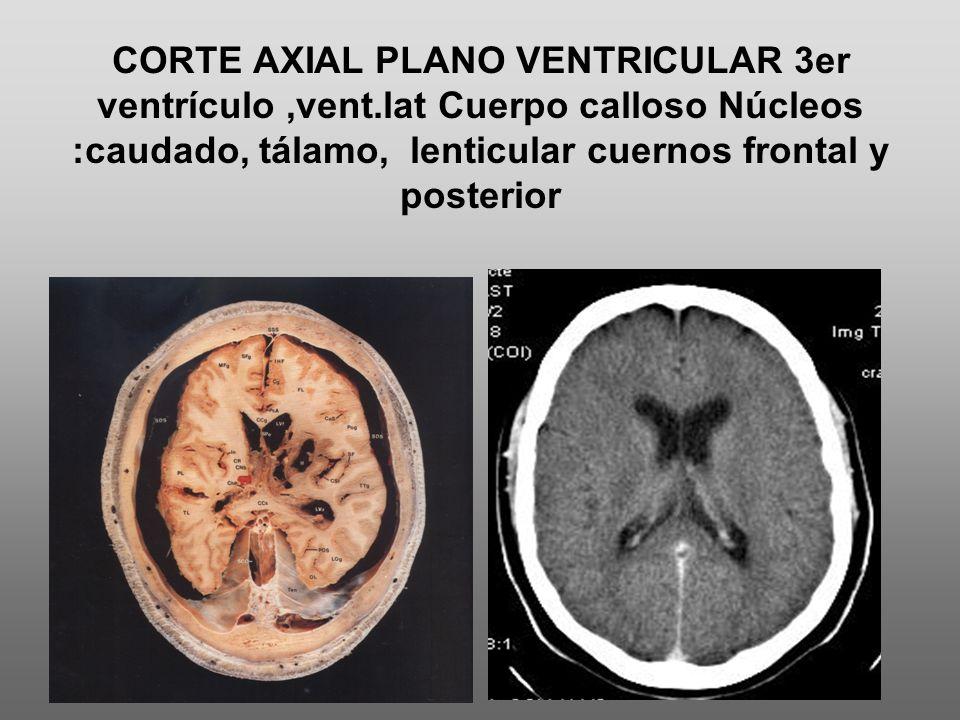 CORTE AXIAL PLANO VENTRICULAR 3er ventrículo ,vent