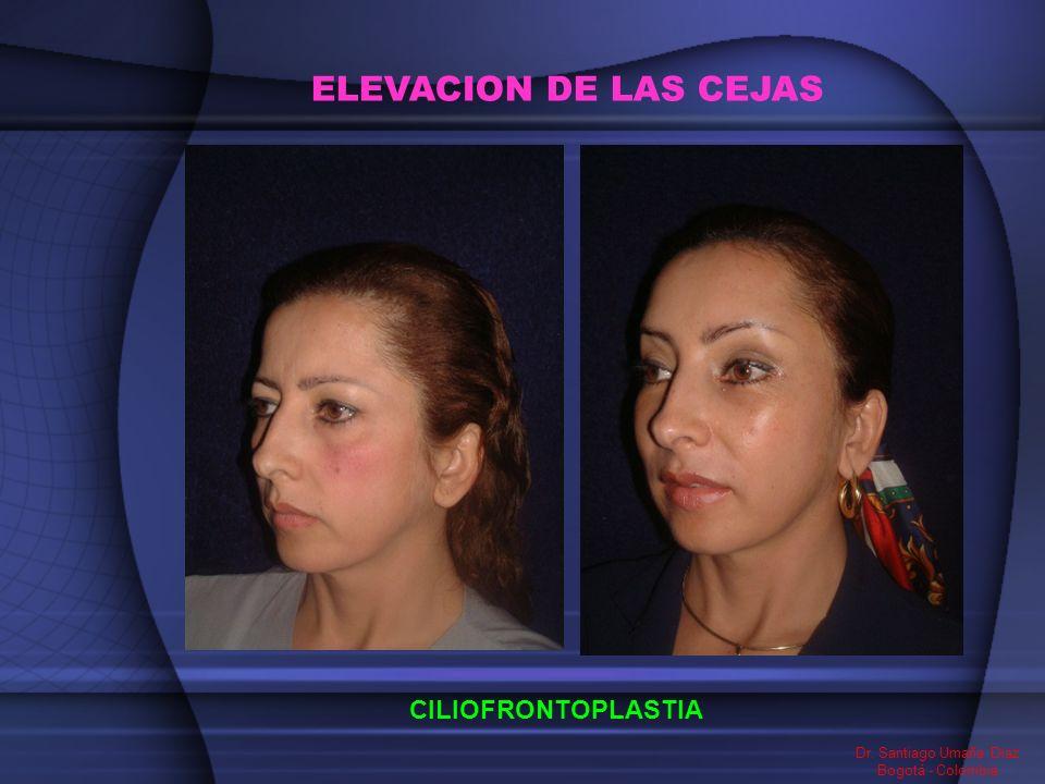 ELEVACION DE LAS CEJAS CILIOFRONTOPLASTIA Dr. Santiago Umaña Diaz