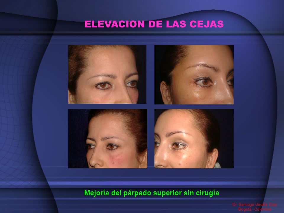 ELEVACION DE LAS CEJAS Mejoría del párpado superior sin cirugía