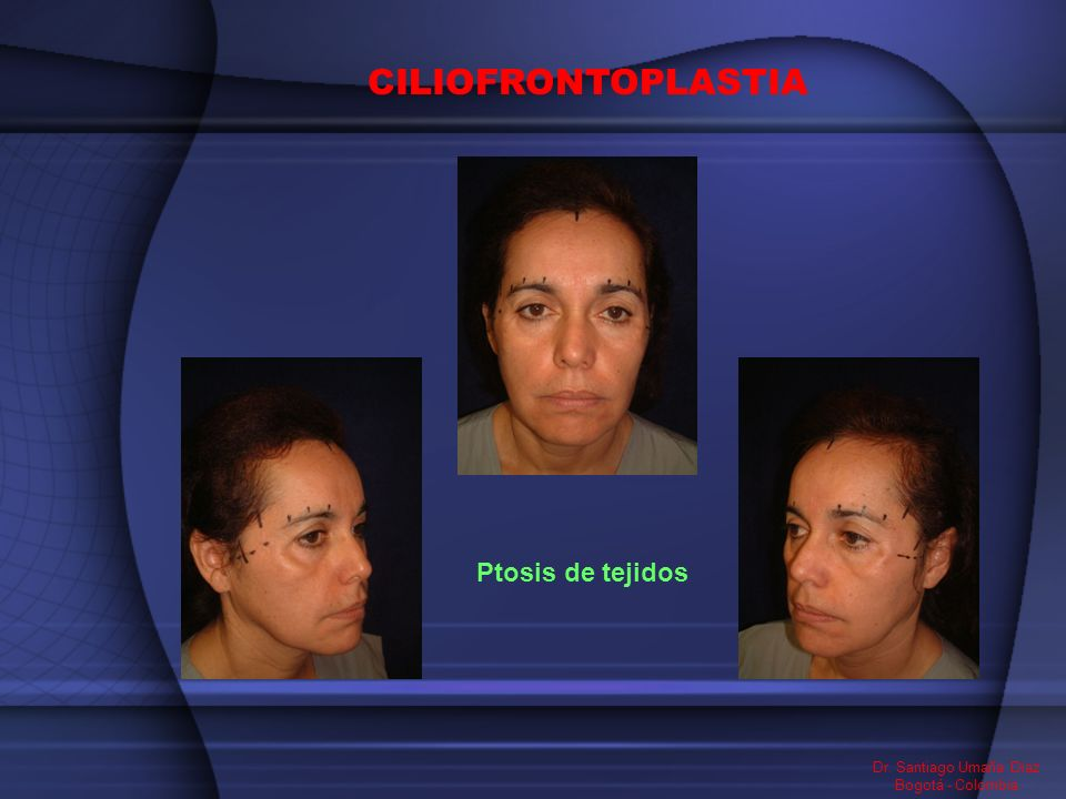 CILIOFRONTOPLASTIA Ptosis de tejidos Dr. Santiago Umaña Diaz