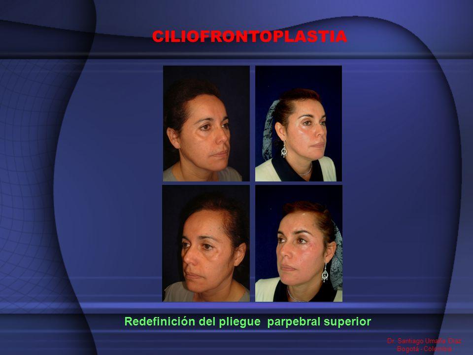 Redefinición del pliegue parpebral superior