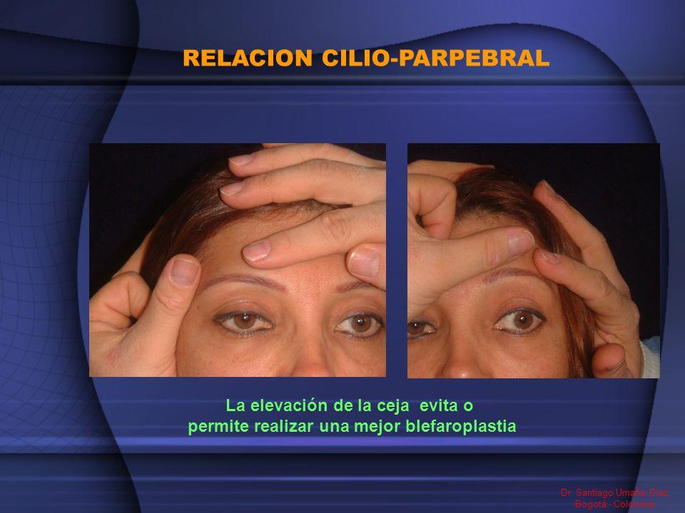 RELACION CILIO-PARPEBRAL