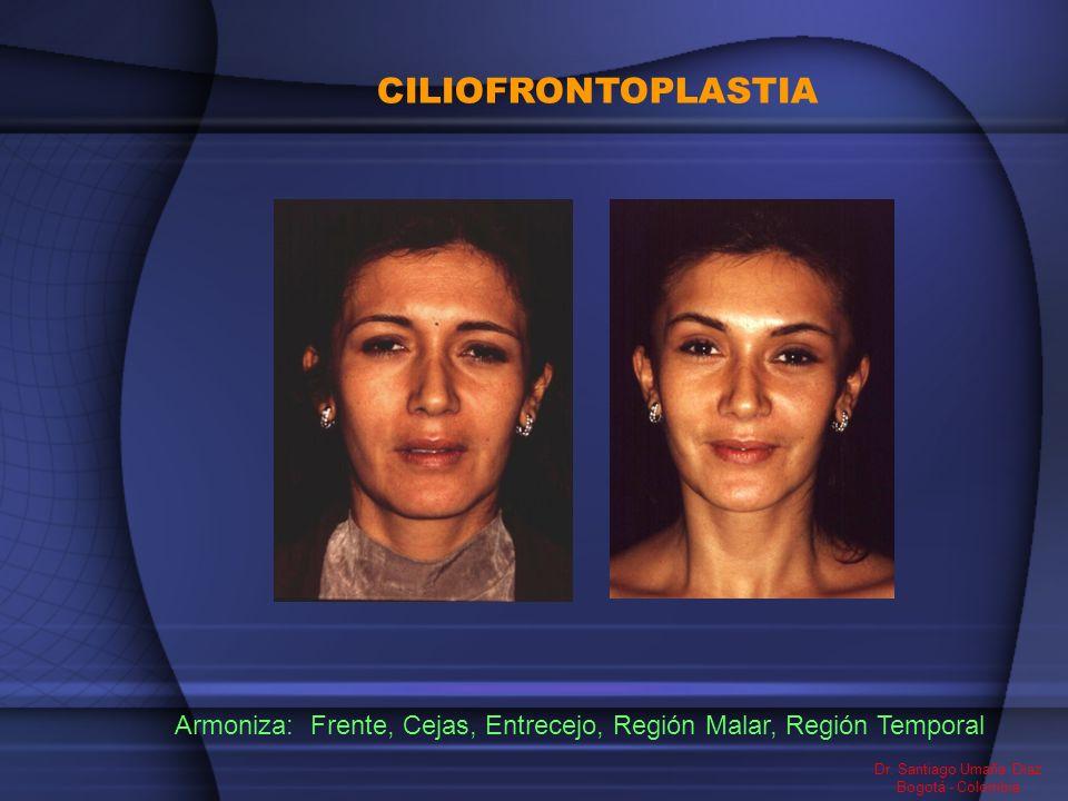 Frente, Cejas, Entrecejo, Región Malar, Región Temporal